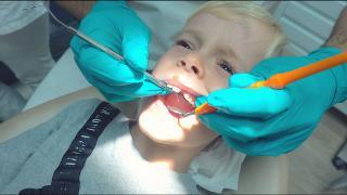 LUAN'S NiEUWE TANDEN KOMEN NiET DOOR?  ( tandarts bezoek) | Bellinga Vlog #1874